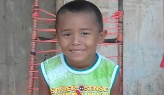 Photo of João Miguel, que sofreu queimaduras graves, precisa com urgência de sangue